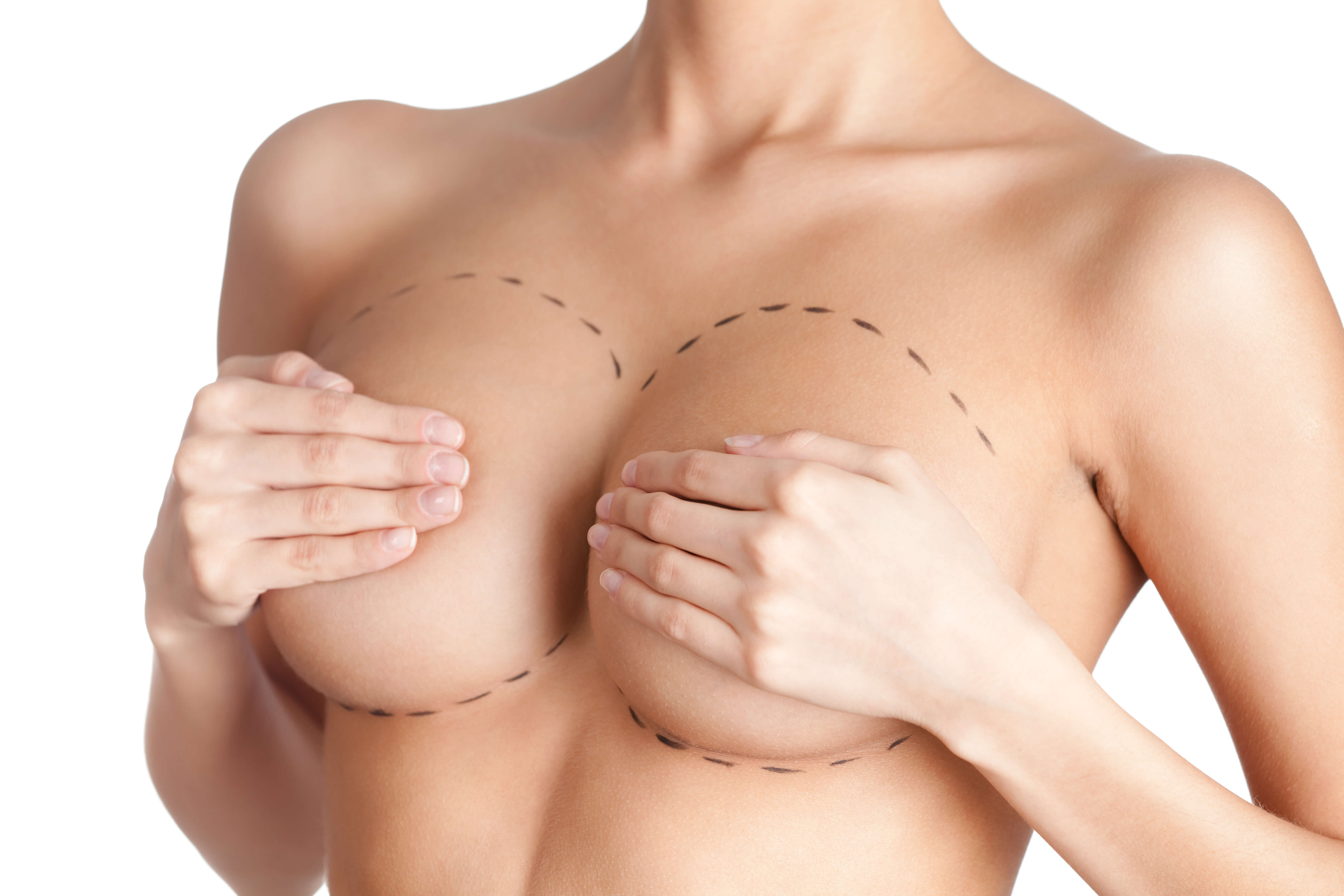 ideal breast implants west palm beach Florida