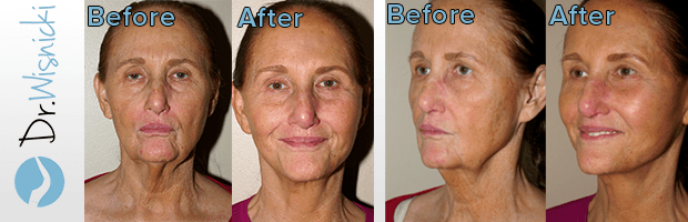 dr wisnicki facelift and eyelid lift